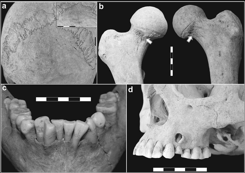 Principales indicadores osteológicos identificados en LP-I. a) hiperostosis porótica leve en occipital; b) cribra femoralis en ambos cuellos de fémur (flechas); c) apiñamiento de la dentición anterior inferior; d) atrición y lesión periapical del primer premolar superior izquierdo; retracción alveolar de la arcada dental posterior