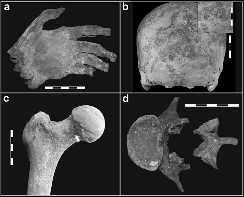 Principales indicadores identificados en LP-II. a) Mano izquierda momificada con tinción verde; b) hiperostosis porótica en occipital; c) cribra femoralis en cuello femoral derecho (flecha); d) espondilolistesis de la quinta lumbar